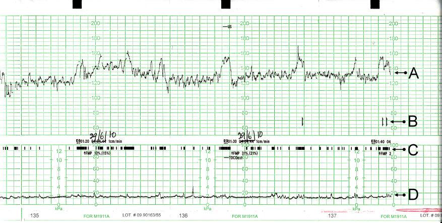 Bežný fyziologický CTG záznam: A- srdečná frekvencia plodu, B- pohyby plodu zaznamenané matkou, C- pohyby plodu a D- sťahy maternice.